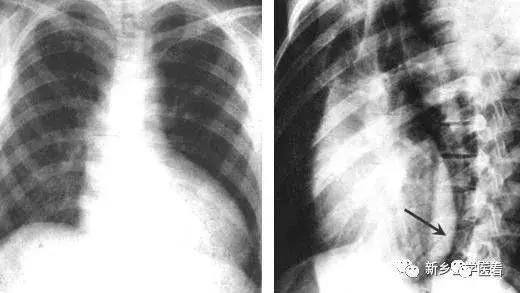 高密度增高影,心臟大血管基本病變