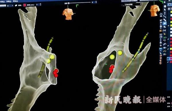 成功,喀什二院首次成功开展全三维指导的零曝光导管射频消融术