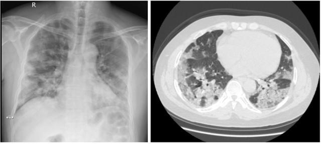 肺部滲出影,千萬警惕!它是流感引發的最嚴重的并發癥之一