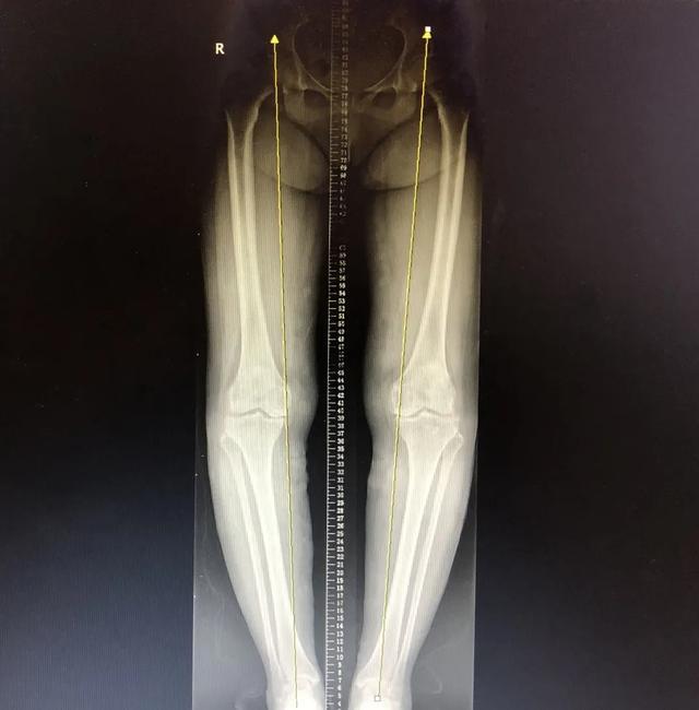北部宽仁医院为双膝重度关节炎患者成功置换关节