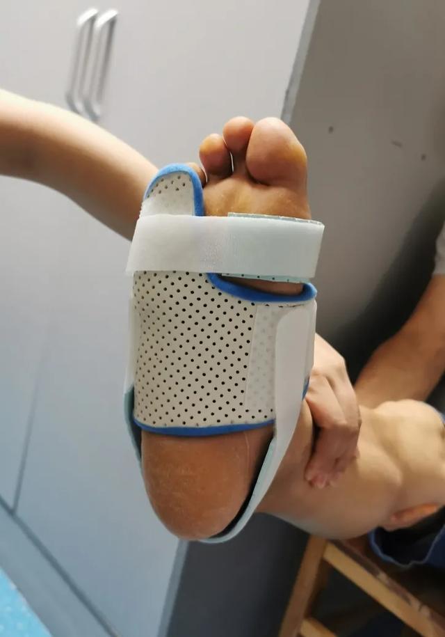 绵阳市中心医院康复医学科硬核医生手工打造矫形器
