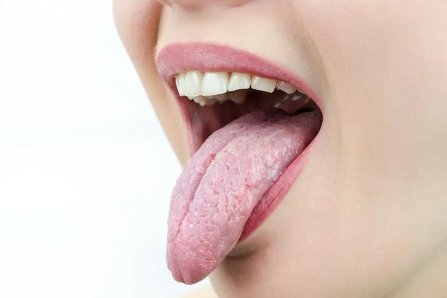 舌苔颜色反映身体疾病|舌苔变白会易患感冒 苔苔黄即是肠胃差?