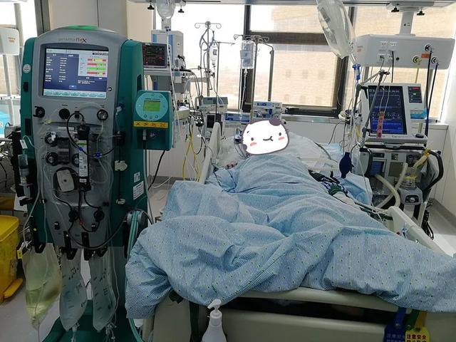 多学科联合抢救高龄重症胆管炎患者