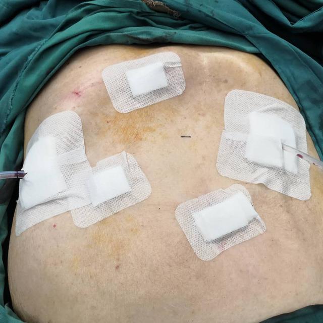 96 岁老人做腹腔镜胆囊癌根治手术 ,第二天下床活动