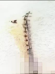 蓟州区人民医院普外科独立完成首例藏毛窦 bascom 臀沟抬高术