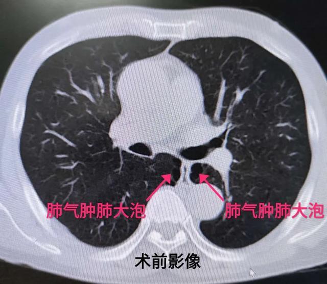 并发症多,预后难,西安大兴胸外周密安排对决食管癌