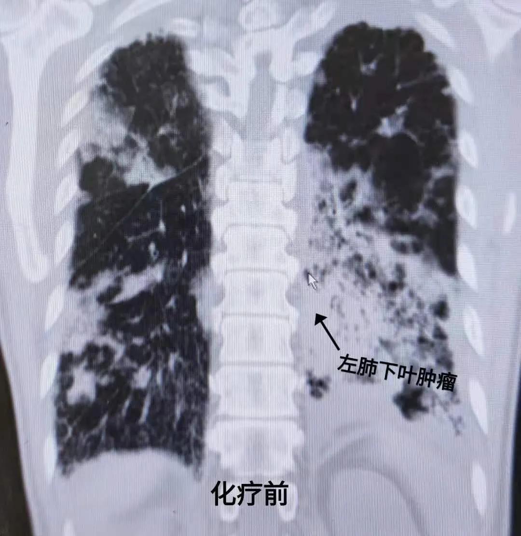 肺癌胸膜转移伴双肺炎如何制定安全有效的治疗方案