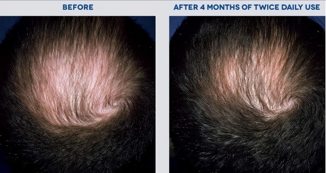 使用过米诺地尔的你现在情况怎么样?能长出头发?毛发医生告诉你