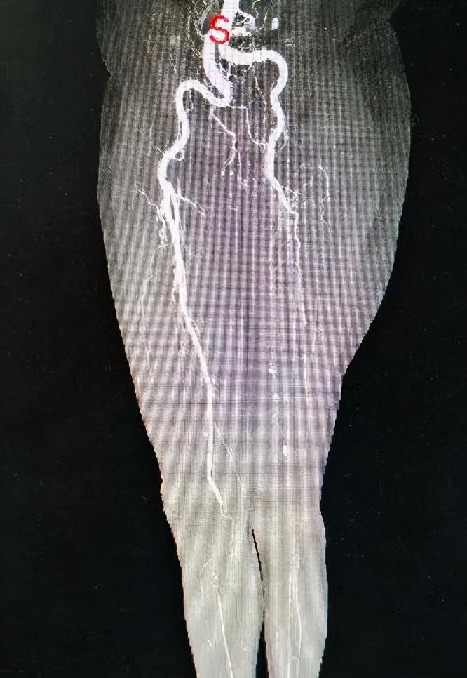 腿疼是关节问题?身体出现这些症状时,一定要当心