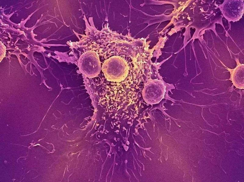 癌症是如何转移的,一旦转移会有什么表现,多个症状提示癌症扩散