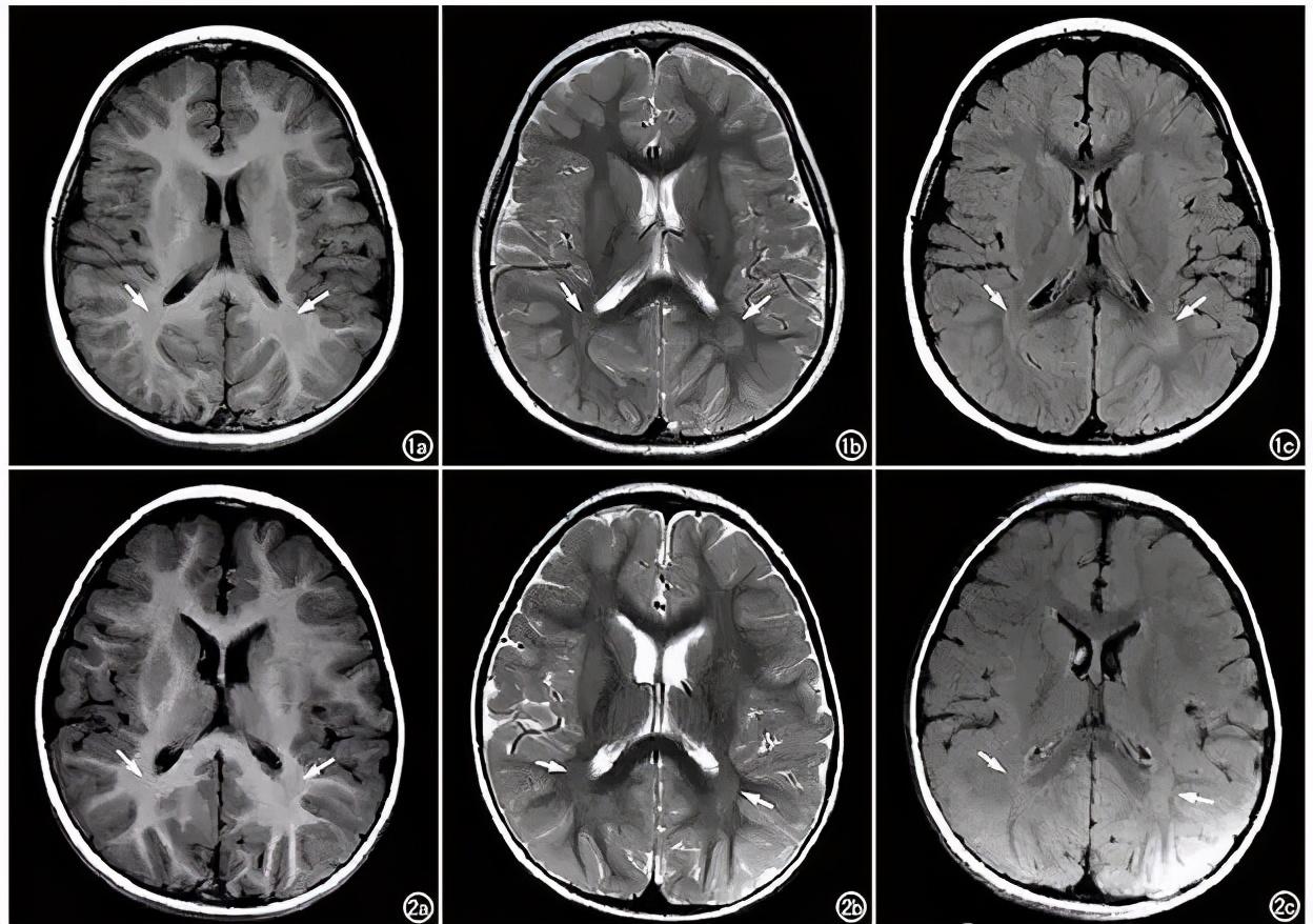 儿童脑瘫诊断方法