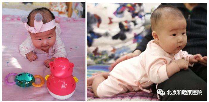为啥有些宝宝在室内也要戴「头盔」?